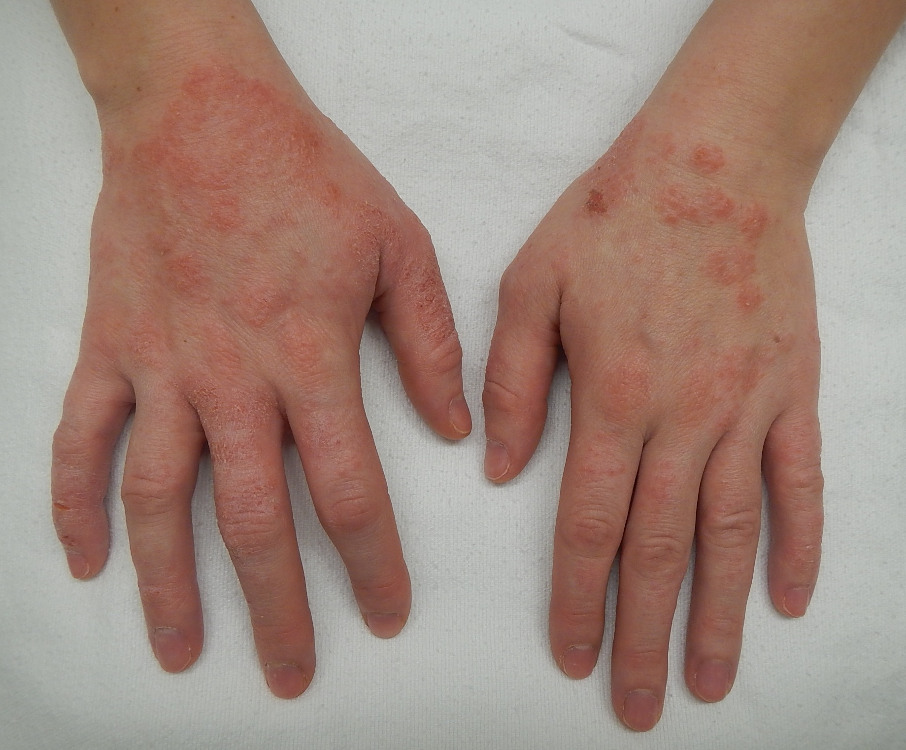Chronic Cold Idiopathic Urticaria Hives Permanent Treatment